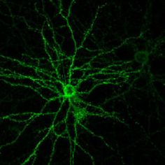 The flip of a single molecular switch helps create the mature neuronal connections that allow the brain to bridge the gap between adolescent impressionability and adult stability. Now Yale School of Medicine researchers have reversed the process, recreating a youthful brain that facilitated both learning and healing in the adult mouse.