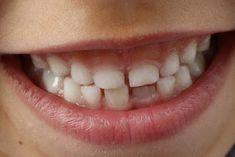 Teeth Health, Oral Health, Dental Health, Dental Care, Healthy Teeth, Natural Skin Whitening, Best Teeth Whitening, Grinding Teeth Kids, Cracked Tooth
