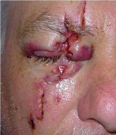 John Lee MD FACS   Reconstructive Eyelid Surgery Gallery Philadelphia PA   Main Line PA   Bryn Mawr PA