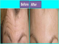How to Get Rid of Forehead Wrinkles-Do not take the wrinkles on your forehead easily as they are one of the first flashes of aging, showing that you are growing older. Repeated facial expressions on various occasions, sun exposure, dehydration etc are among the main causes of wrinkles on your forehead. However, there is no need to panic as you can …