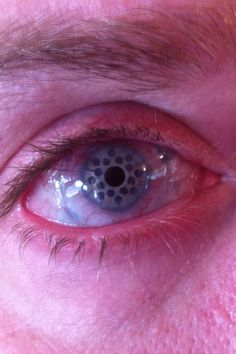 Uncle's eye healed after corneal transplant surgery