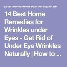 14 Best Home Remedies for Wrinkles under Eyes - Get Rid of Under Eye Wrinkles Naturally | How to Get Rid of Forehead Wrinkles and Frown Lines #CrowsFeet #beautytricks #LipFillersSwelling #CrowsFeetHomeRemedies #IngrownHairRemedies Bumps Under Eyes, Under Eye Wrinkles, Face Cream For Wrinkles, Prevent Wrinkles, Tips And Tricks, Beauty Tricks, Home Remedies For Wrinkles, Ingrown Hair Remedies, Wrinkled Skin