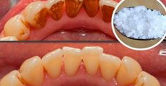 Video shows 3 best ways to remove teeth plaque or tartar at home without visiting a dentist for your dental cleaning. Remedies For Strong and White Teeth: ht. Dental Care, Homemade Mouthwash, Tartar Removal, Best Teeth Whitening, White Teeth, Oral Health, Public Health, Food Recipes, Get Skinny