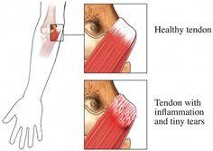 Medial Epicondylitis - What Is It, Symptoms, Causes | Lifescript.com