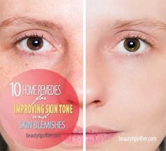 10 Home Remedies for Improving Skin Tone or Skin Blemishes   Beauty and MakeUp Tips