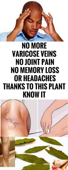 No More Varicose Veins, No Joint pain, No Memory Loss, Or Headaches Thanks to This Plant, Know It – New Healthy Lifestyle