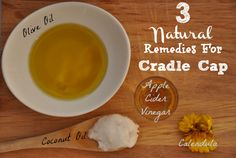 Does your baby have cradle cap?! (Yuck!)   Pin this: how to get rid of cradle cap NATURALLY.