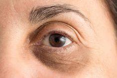 Get rid of Under Eye Dark circle Under Eye Wrinkles, Prevent Wrinkles, Periorbital Dark Circles, Circulation Sanguine, Wrinkled Skin, Puffy Eyes, Dark Eyes, Tips Belleza, Skin Care