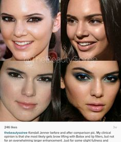 Kendall Jenner before and after surgery