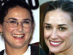 Demi Moore is no stranger to cosmetic dentistry procedures either. She has reportedly spent more than 12 thousand on her veneers and laser teeth whitening treatments in order to receive the beautiful smile that she flashes today. Moore had straight teeth Celebrity Teeth, Celebrity Smiles, Veneers Teeth, Dental Veneers, Demi Moore, Cellulite, Cosmetic Dentistry Procedures, Bad Plastic Surgeries, Smile Makeover