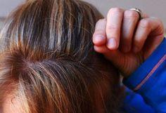 Trápia Vás šediny? Skúste tento prírodný recept a sivé vlasy zmiznú akoby mávnutím čarovného prútika Grey Hair Remedies, Home Remedies For Hair, Natural Remedies, Causes Of Hair Fall, Home Remedies For Wrinkles, Going Gray Gracefully, Covering Gray Hair, Hair Starting, Color Your Hair