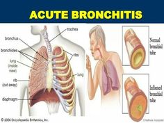 Bronchial asthma bronchitis Signs & Signs as well as just how to overcome naturally as well as successfully Natural Remedies For Bronchitis, Cough Remedies, Asthma Symptoms, Health And Beauty Tips, Health And Wellness, Acute Bronchitis, Ways To Be Happier