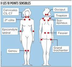 La Fibromyalgie Plus Michel Dogna, Susa, Acupuncture, Chronic Pain, Wellness, Visible, T5, Voici, Articles