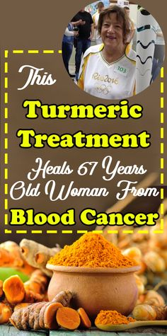 Turmeric Treatment Heals 67 Years Old Woman From Battle With Blood Cancer - Health and Wellness Tips Natural Cancer Cures, Natural Cures, Natural Health, Health And Fitness Tips, Health Tips, Health And Wellness, Wellness Tips, Women's Fitness, Fitness Workouts