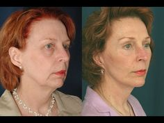 A Facial Exercise Toning Program That Results In Natural Facelifts: Homemade Acupressure Facelift: Fighting Face Lines And Tightening Skin With Face Yoga Do Facial Exercises Work, Face Yoga Exercises, Facelift Without Surgery, Acupressure Treatment, Acupuncture, Natural Face Lift, Facial Yoga, Simple Face, Face Lines