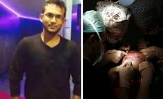 In a shocking incident, a final year medical student passed away a day after undergoing hair transplant surgery! Hair Transplant Surgery, Medical Students, Chennai, News