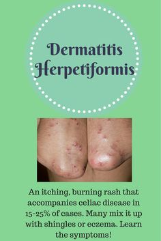 Don't treat the wrong skin condition! Learn what dermatitis herpetiformis is if you have celiac disease.