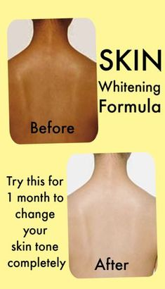 Try this skin whitening formula for 1 month to make your skin tone extremely fair - Skin Lightening - Skin Care Skin Tips, Skin Care Tips, Beauty Care, Beauty Skin, Beauty Hacks, Diy Beauty, Beauty Secrets, Beauty Guide, Beauty Ideas