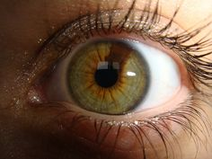 PartialHeterochromia - Heterochromia iridum, Hazel eye with a brown section