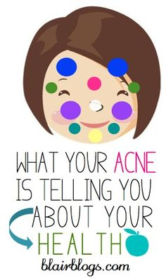 I had no idea that the location of facial acne is indicative of different health problems! This post helps to self-diagnose and cure acne.