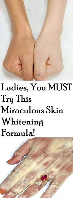 Ladies, You MUST Try This Miraculous Skin Whitening Formula!