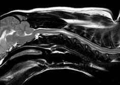 T2 Weighted MRI picture of an King Charles Cavalier, showing a congenital defect known as a syrinx. This breed is often screened using MRI prior to breeding.
