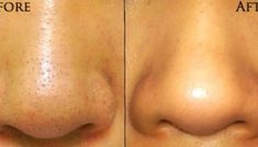 Easy Effective Home Remedy for Blackheads