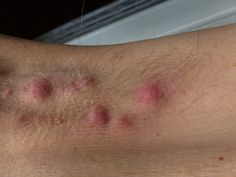 Skin diseases: knowing hidradenitis suppurativa
