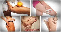 Truth about Cellulite will help you regain your sexy appearance within just a few days. #Fitness #Motivation