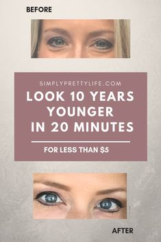 Look 10 Years Younger In 20 Minutes Beauty Tips Beauty Skin 20 makeup hacks in 5 minutes - Makeup Hacks Beauty Skin, Health And Beauty, Beauty Care, Healthy Beauty, Lotion, Under Eye Bags, Eyes Problems, Skin Tag, Belleza Natural