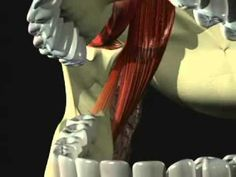 Mandibular Anesthesia - Introduction - YouTube