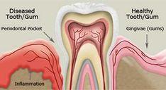 How the gum disease looks like