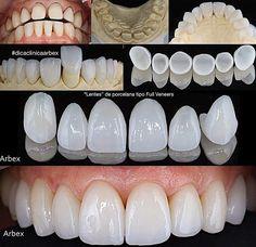 Dental Logo, Dental Art, Teeth Makeover, Dental Wallpaper, Veneers Teeth, Cute Tooth, Beautiful Teeth, Ash Blonde Balayage, Smile Dental