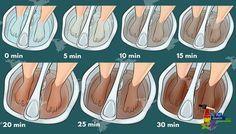 Sabía que puede desintoxicar su cuerpo a través de sus pies? #salud