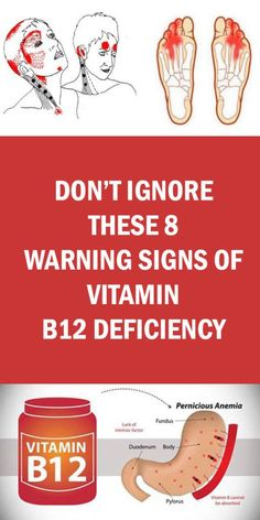 Don't Ignore These 8 Warning Signs Of Vitamin Deficiency - Page 2 of 4 - Buzzhome World Health And Beauty Tips, Health And Wellness, Health Tips, Health Care, Beauty Tricks, Health Benefits, Health Fitness, Mineral Deficiency, Vitamin Deficiency