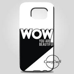 Wow Samsung Galaxy Note 8 Case   casescraft