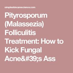skin care - Pityrosporum (Malassezia) Folliculitis Treatment How to Kick Fungal Acne's Ass Skin Care Treatments, Pustules Acne, Natural Skin Care, Natural Health, Youre Like Really Pretty, Foods For Healthy Skin, Naturopathy, Skin Food