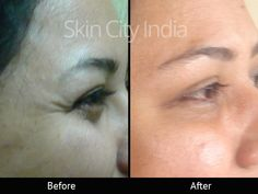 Skin City India - Botox Treatment for Wrinkles