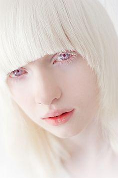 Nastya Zhidkova, Russian albino model.