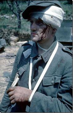An injured German soldier in captivity. -