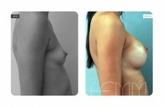 Aumento de pecho realizado a una paciente de 23 años, a la que se le colocan unos implantes redondos de 360cc. El Aumento de pecho se practica vía surco submamario, situándose los implantes en el plano subpectoral.