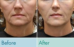 The truth about cosmetic fillers