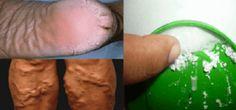 ¡Un verdadero milagro! ¡Este remedio casero puede curar talones agrietados, callos y varices, en apenas 10 días!