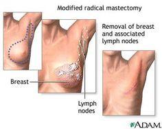 Vrste masektomije – hiruško uklanjanje tumora dojke - Demetra - sajt za žene, supruge, mame i ćerke