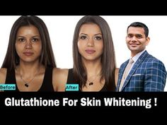 Magical Pill Glutathione For Glowing Skin. Dose it really works! - YouTube Healthy Eyes, Liver Detox, Glowing Skin, Pills, Whitening, Natural Remedies, Natural Beauty, It Works, Medicine