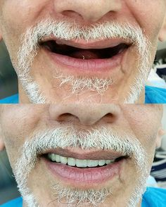 Complete Denture delivered  #nyucd #dentures #cheese # by irenek93 Our Dentures Page: http://www.myimagedental.com/services/general-dentistry/dentures/ Other General Dentistry services we offer: http://www.myimagedental.com/services/general-dentistry/ Google My Business: https://plus.google.com/ImageDentalStockton/about Our Yelp Page: http://www.yelp.com/biz/image-dental-stockton-3 Our Facebook Page: https://www.facebook.com/MyImageDental Image Dental 3453 Brookside Road Suite A Stockton CA…