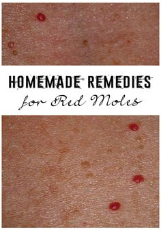 Homemade remedies for red moles - DOMTRUE