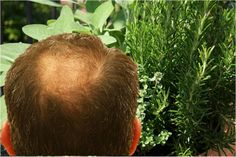by Cathy Ongking Baldness, thinning hair, receding hairline - whatever you want to call it, hair loss is a concern many experience particularly during mid to late adulthood. Even though males are u...