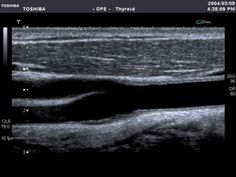 Carotid u/s (Another favorite of mine -MH). WOW!!!! Great image. I wish I could find it that good!