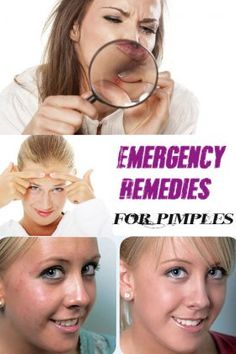 Emergency Remedies for Pimples